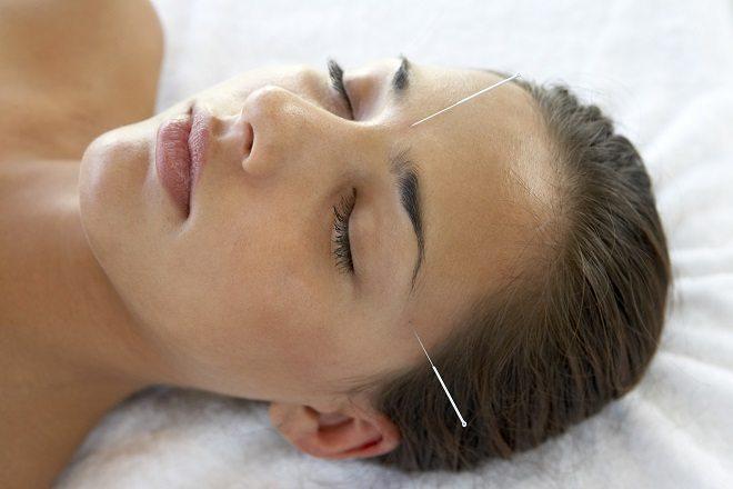 Conheça os benefícios da acupuntura para a saúde